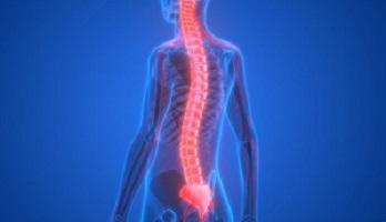 atrofia-muscular